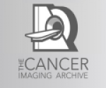 The Cancer Imaging Archive